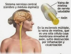 dibujo del cerebro de una mujer y del axón de una neurona