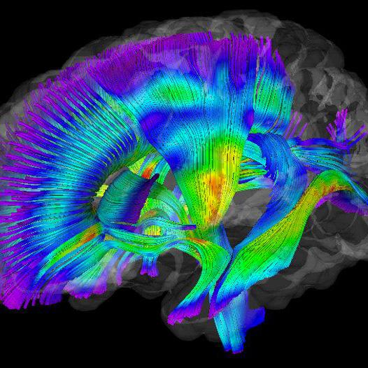 La importancia de la neuropsicología en los niños con espasticidad
